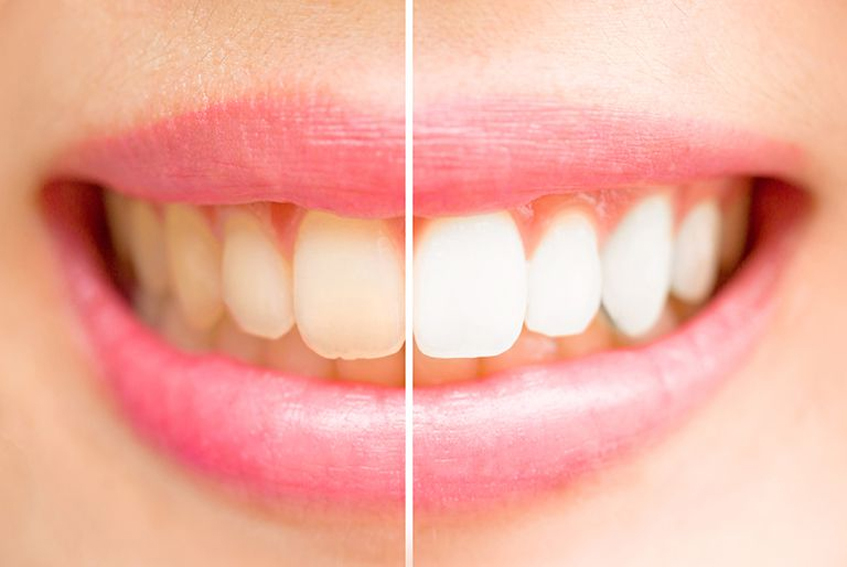 Teeth Whitening Viman Nagar Teeth Whitening Cost Pune