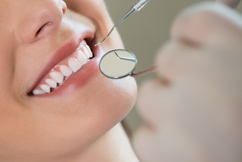 Teeth Cleaning Viman Nagar Teeth Cleaning Cost Pune