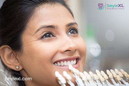 Smile Makeover in Viman Nagar